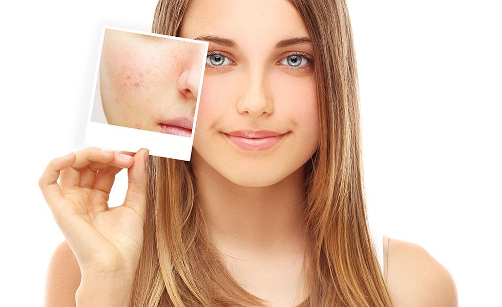 Acne Creams Toronto